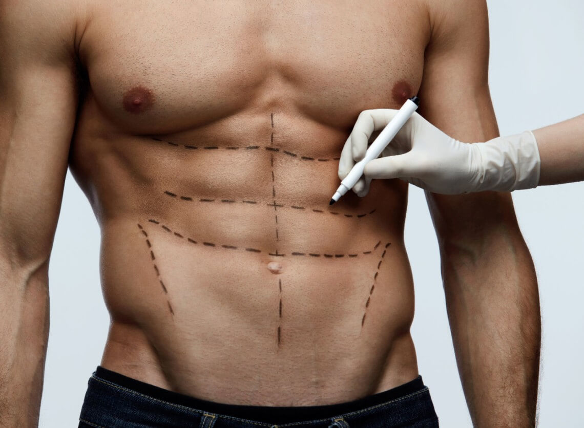 Top 5 Most Popular Plastic Surgery Procedures for Men - BBstyles.net